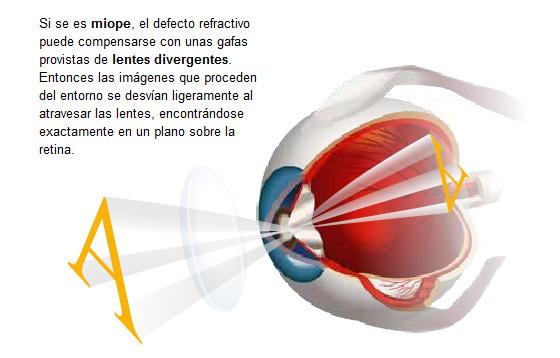 1c3ebe38fc ¿A qué edad se pueden poner las primeras gafas o lentes de contacto?