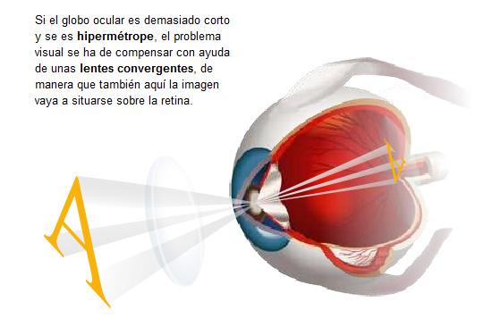 6f00b9f8f3 ¿A qué edad se pueden poner las primeras gafas o lentes de contacto?